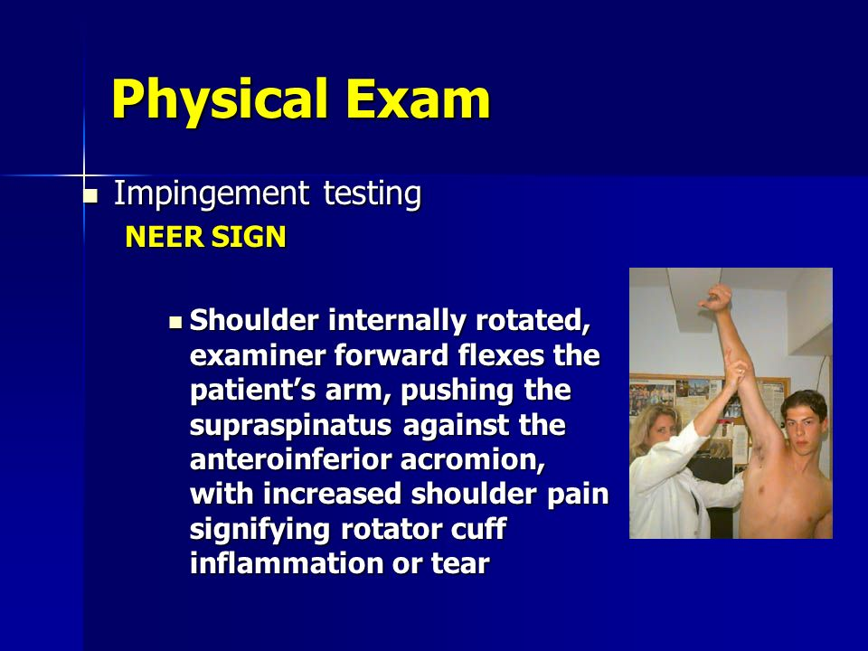 Physical Exam Impingement testing NEER SIGN