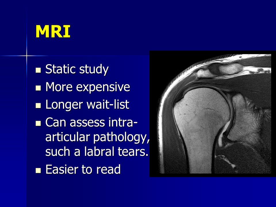 MRI Static study More expensive Longer wait-list