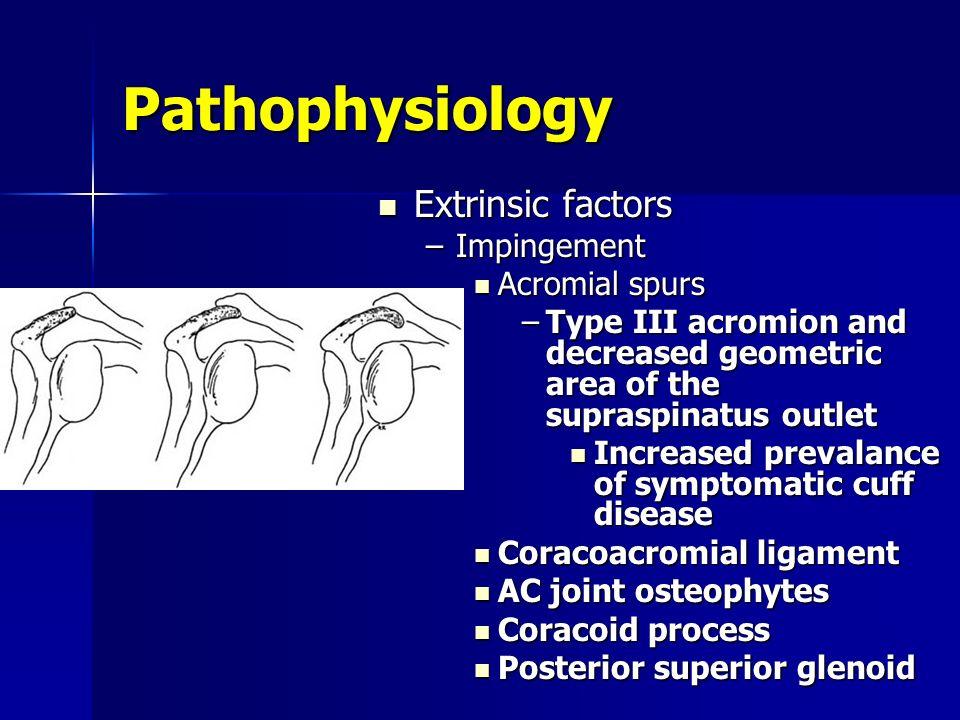 Pathophysiology Extrinsic factors Impingement Acromial spurs