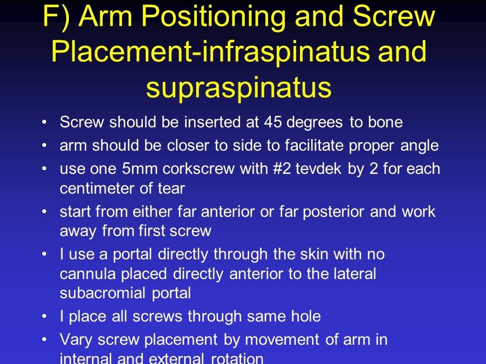 F) Arm Positioning and Screw Placement-infraspinatus and supraspinatus