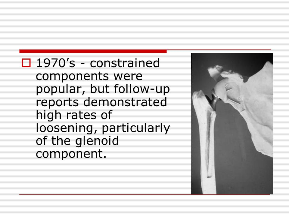 1970's - constrained components were popular, but follow-up reports demonstrated high rates of loosening, particularly of the glenoid component.
