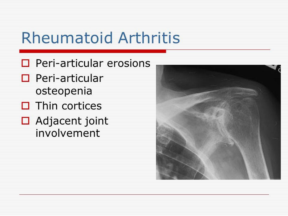 Rheumatoid Arthritis Peri-articular erosions Peri-articular osteopenia