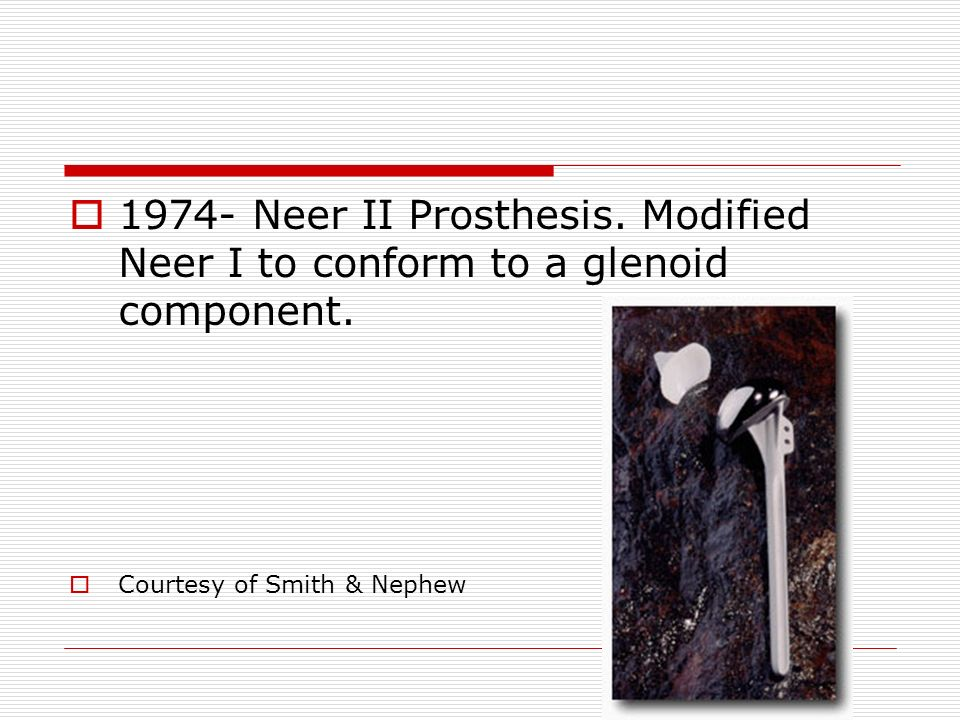 1974- Neer II Prosthesis. Modified Neer I to conform to a glenoid component.