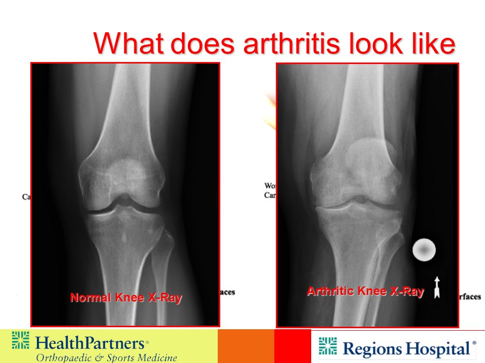 What does arthritis look like