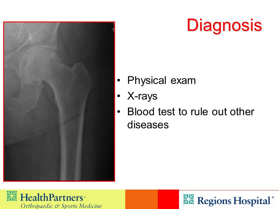 Diagnosis Physical exam X-rays Blood test to rule out other diseases