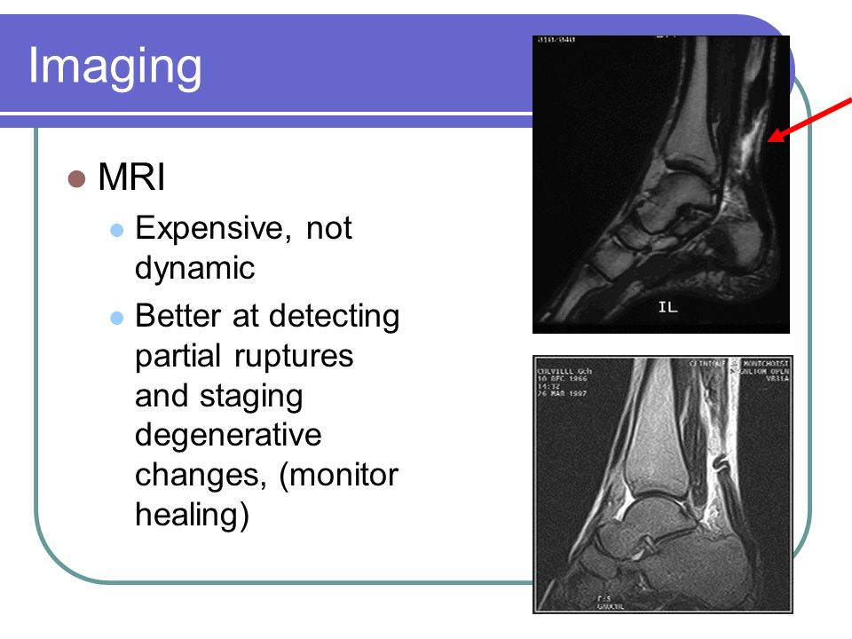 Imaging MRI Expensive, not dynamic