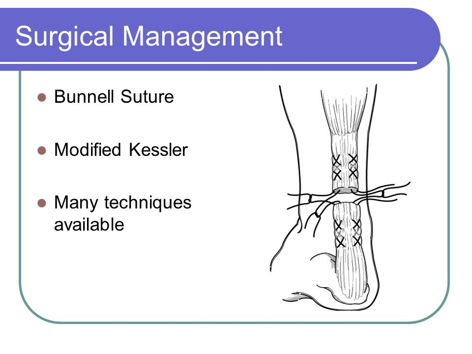 Surgical Management Bunnell Suture Modified Kessler