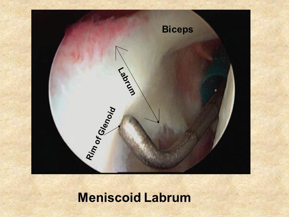 Biceps Labrum Rim of Glenoid Meniscoid Labrum