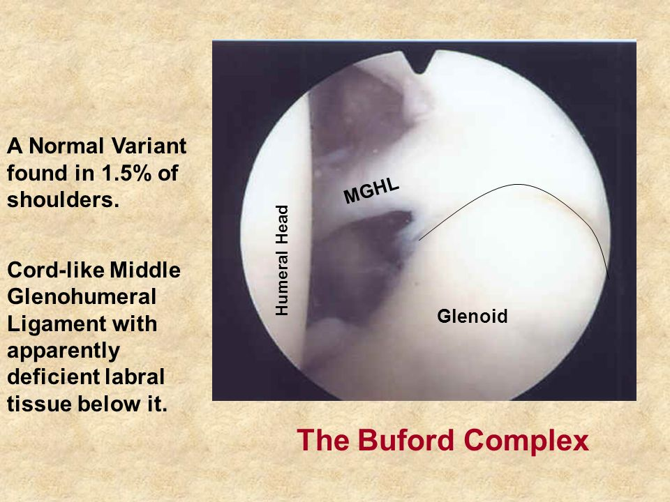 A Normal Variant found in 1.5% of shoulders.
