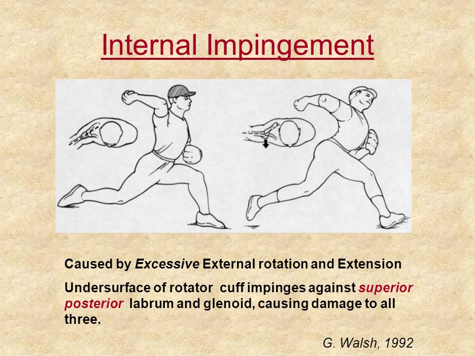 Internal Impingement Caused by Excessive External rotation and Extension.