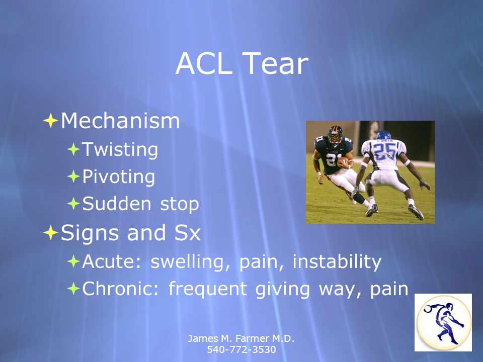 ACL Tear Mechanism Signs and Sx Twisting Pivoting Sudden stop