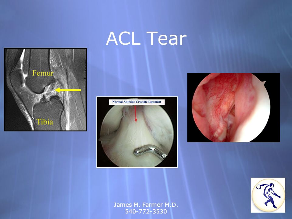 ACL Tear James M. Farmer M.D. 540-772-3530