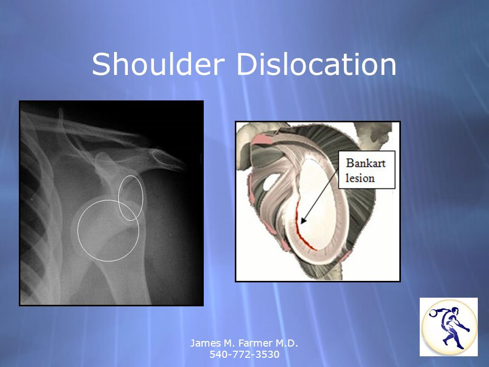 Shoulder Dislocation James M. Farmer M.D. 540-772-3530