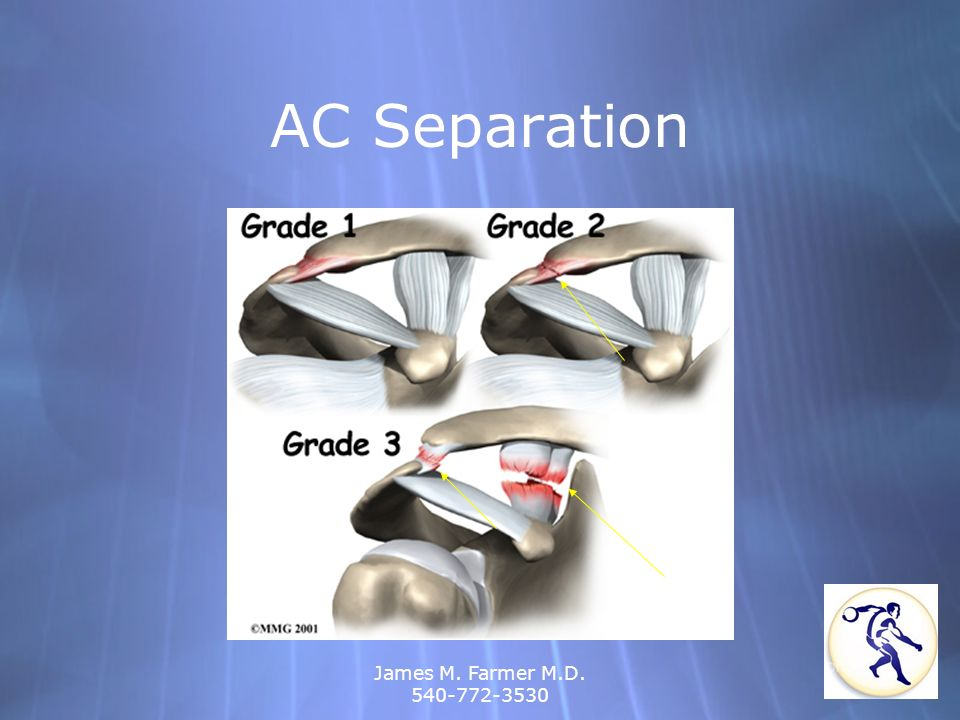 AC Separation James M. Farmer M.D. 540-772-3530