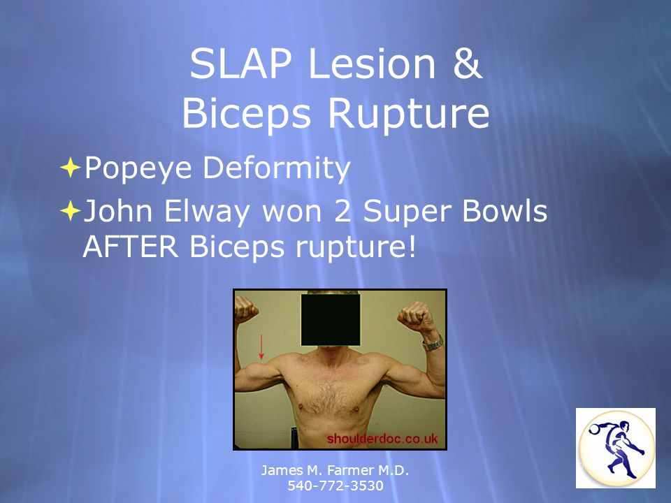 SLAP Lesion & Biceps Rupture