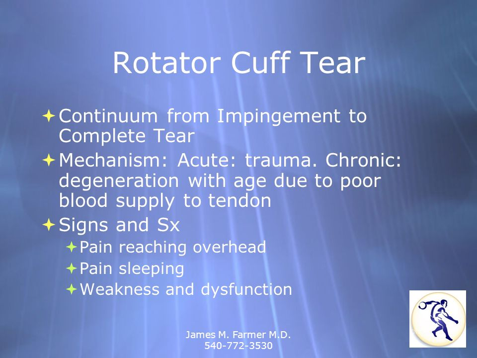 Rotator Cuff Tear Continuum from Impingement to Complete Tear