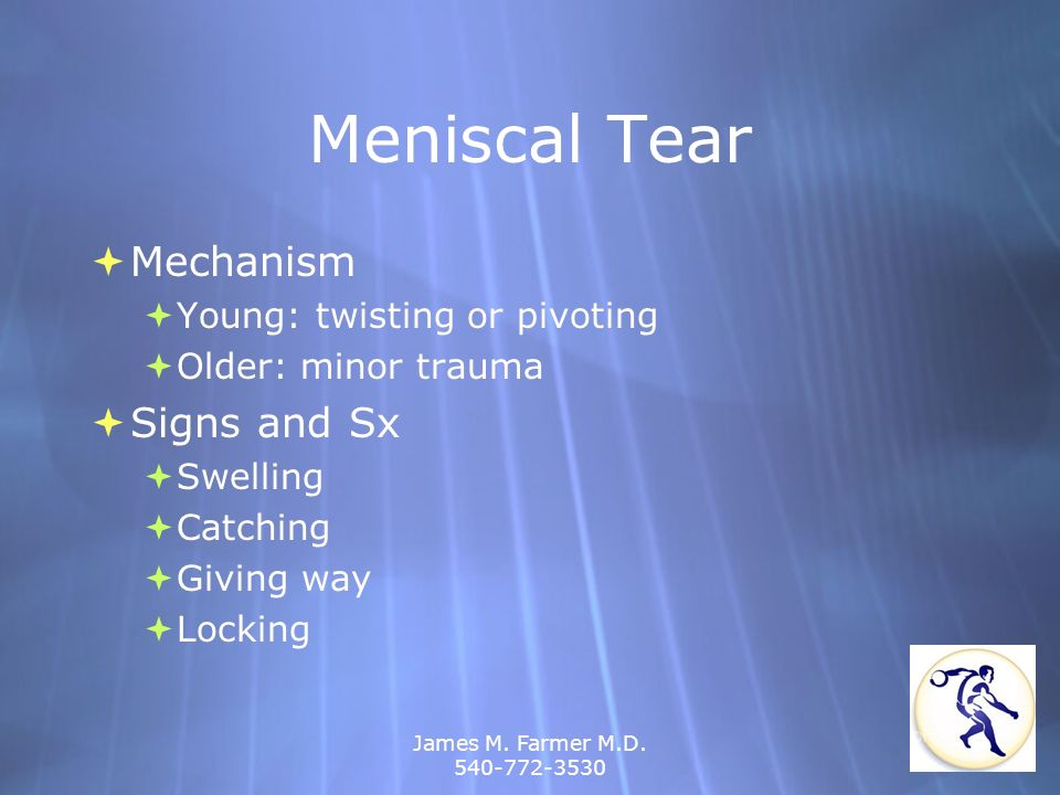 Meniscal Tear Mechanism Signs and Sx Young: twisting or pivoting