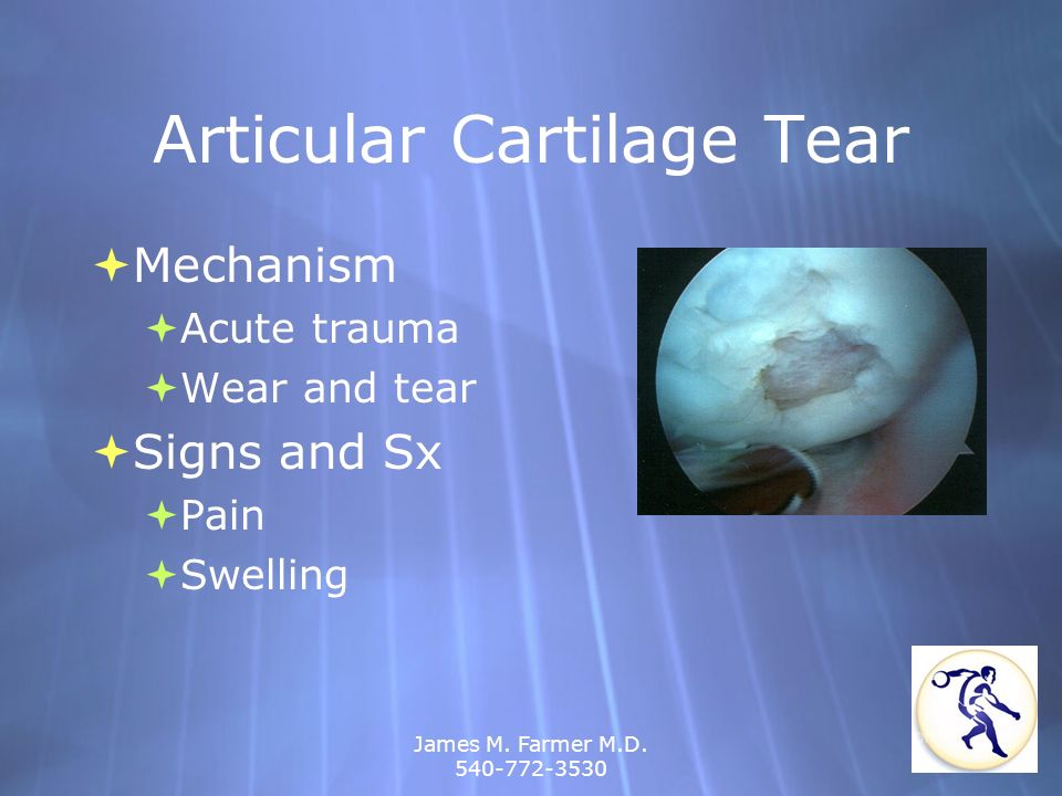 Articular Cartilage Tear
