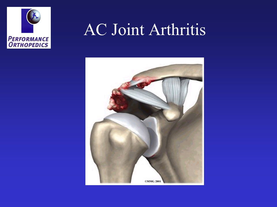 AC Joint Arthritis