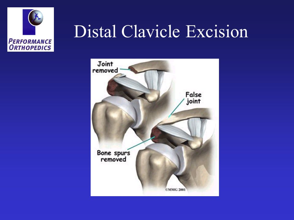 Distal Clavicle Excision