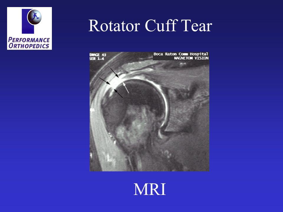 Rotator Cuff Tear MRI