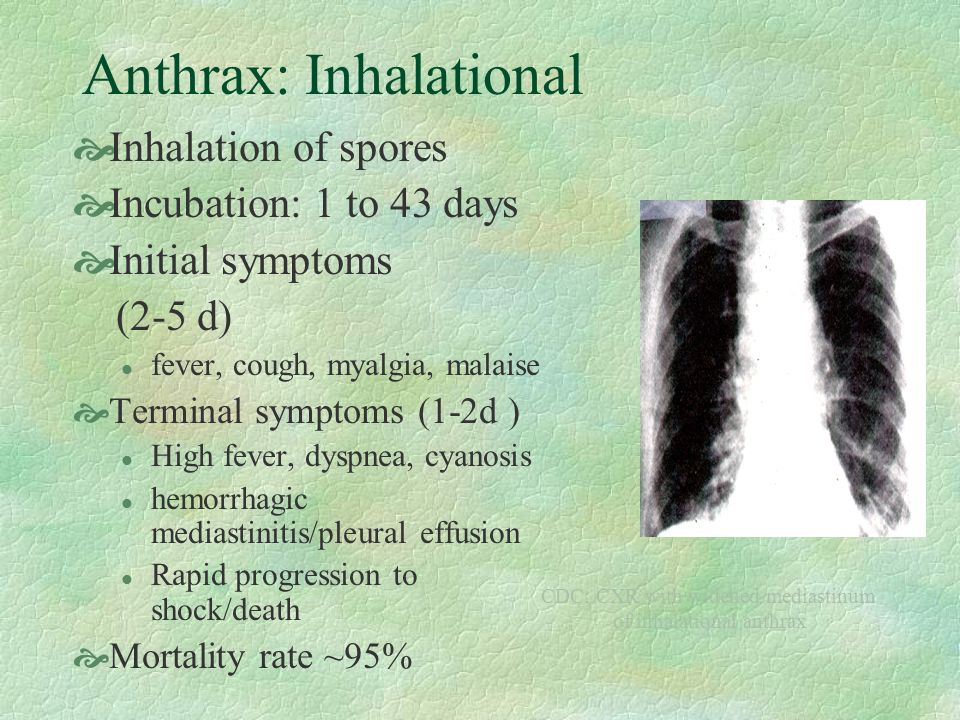 Anthrax: Inhalational