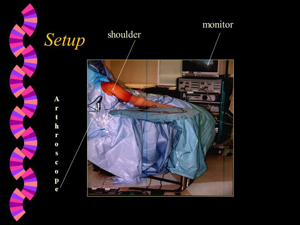 monitor Setup shoulder A r t h o s c p e