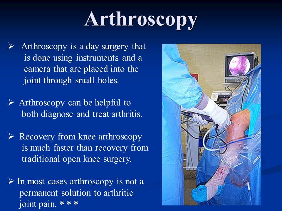 Arthroscopy Arthroscopy is a day surgery that