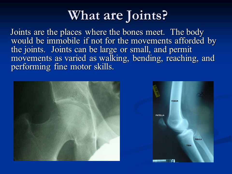 What are Joints