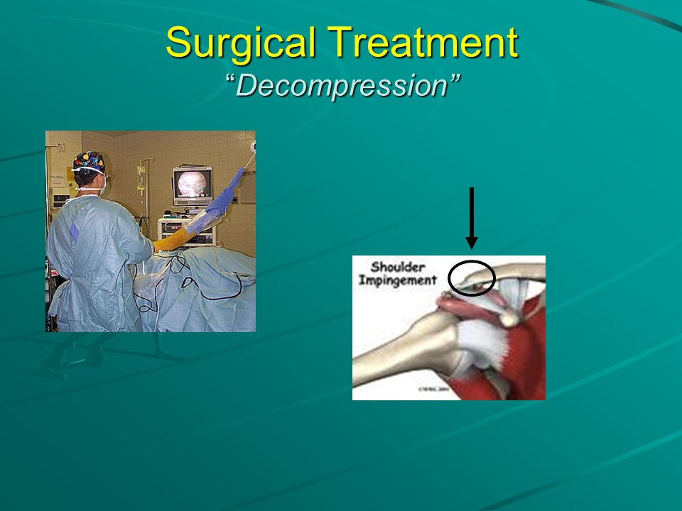 Surgical Treatment Decompression