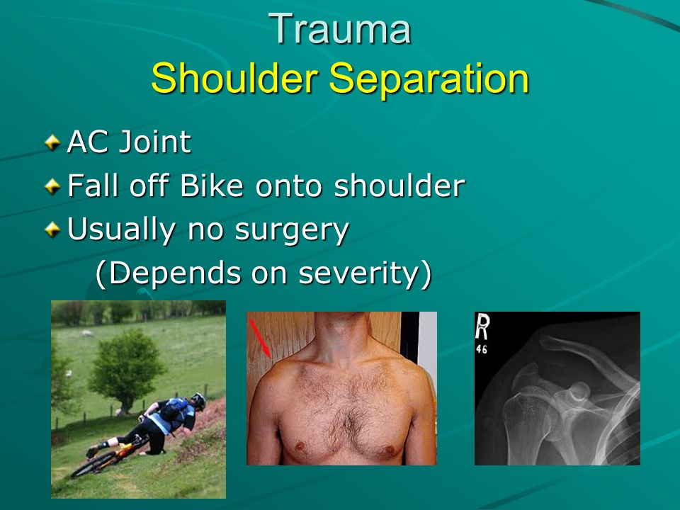 Trauma Shoulder Separation