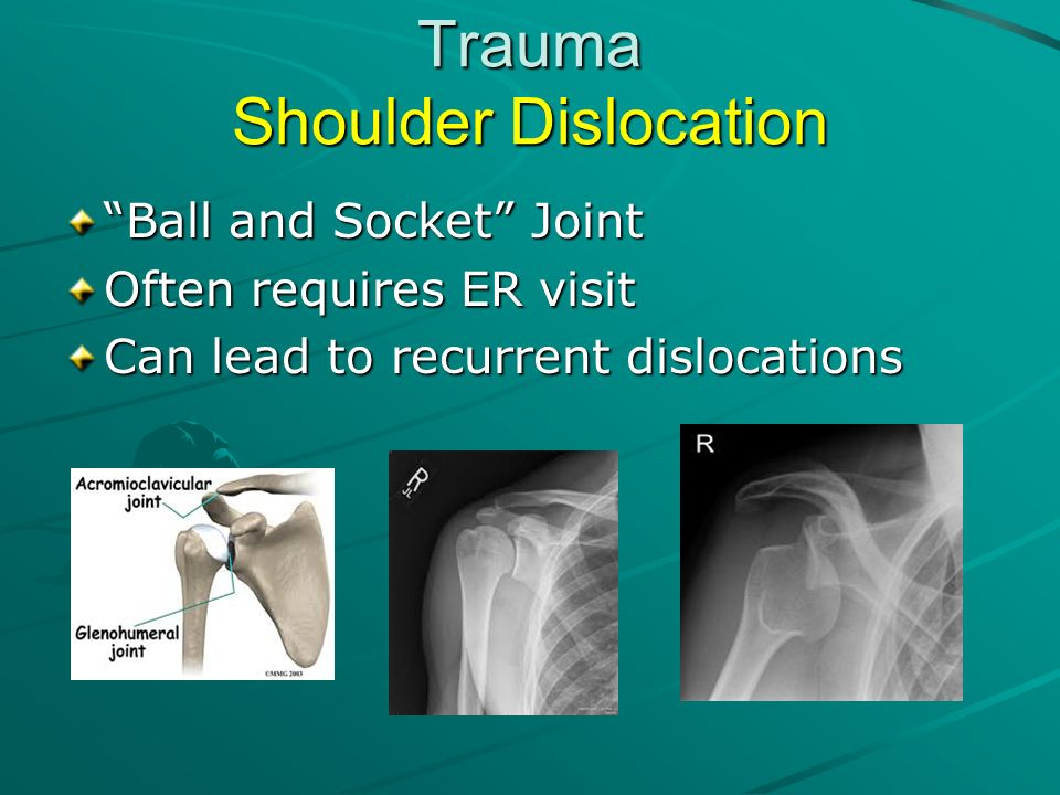 Trauma Shoulder Dislocation