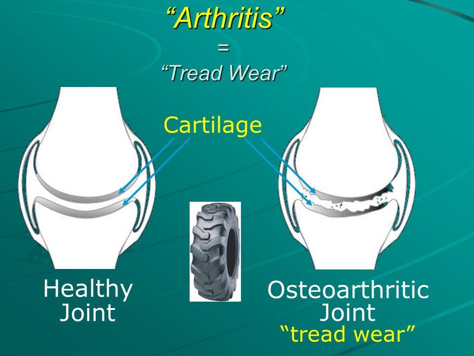 Arthritis = Tread Wear