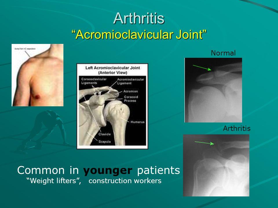Arthritis Acromioclavicular Joint