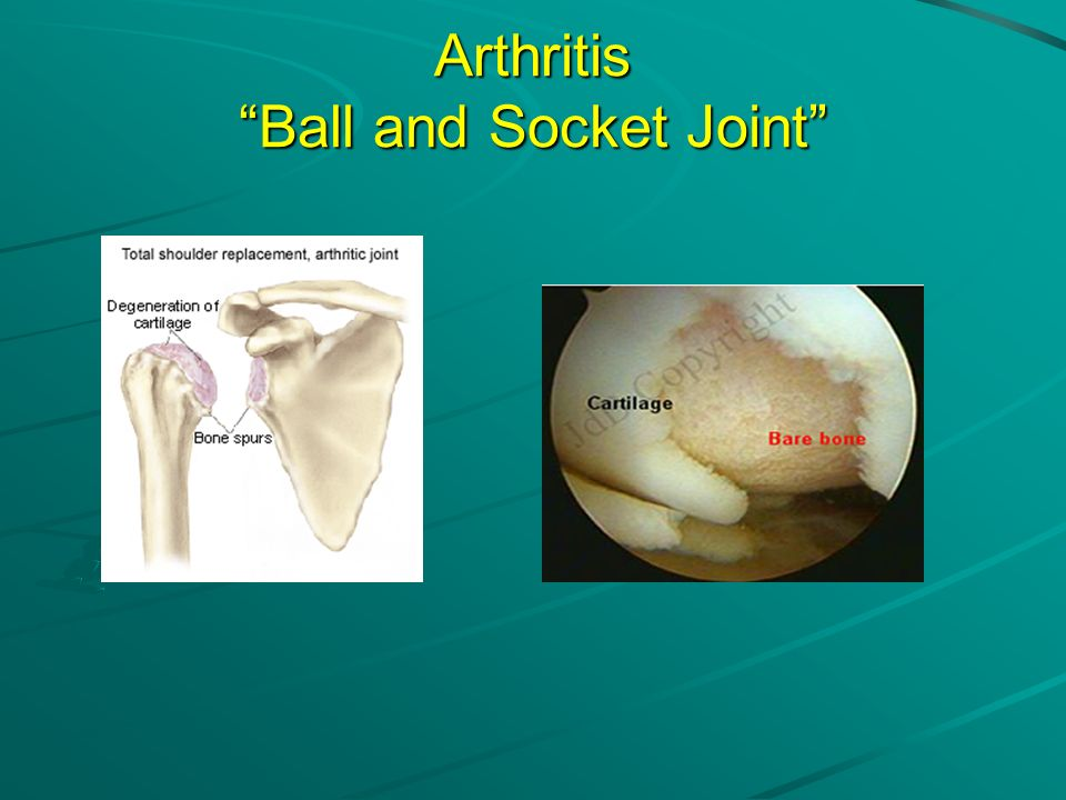 Arthritis Ball and Socket Joint