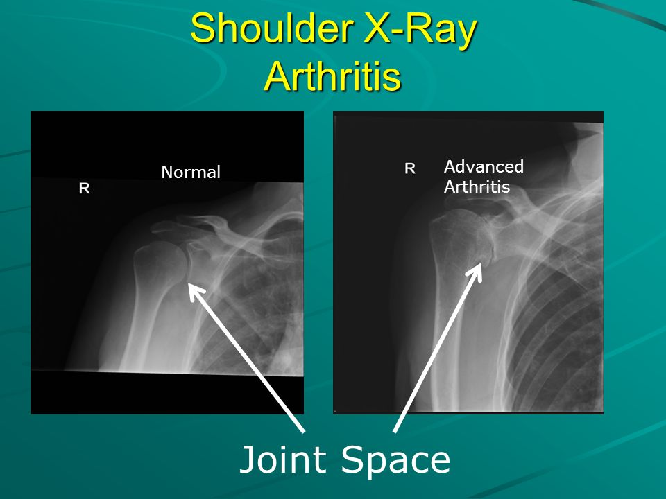 Shoulder X-Ray Arthritis