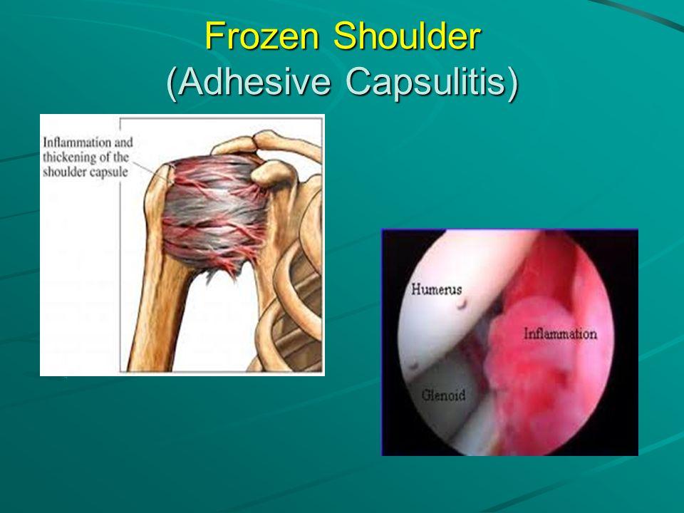 Frozen Shoulder (Adhesive Capsulitis)