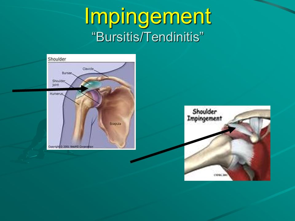 Impingement Bursitis/Tendinitis