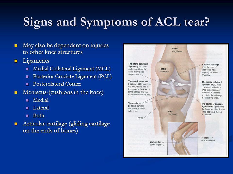 Signs and Symptoms of ACL tear