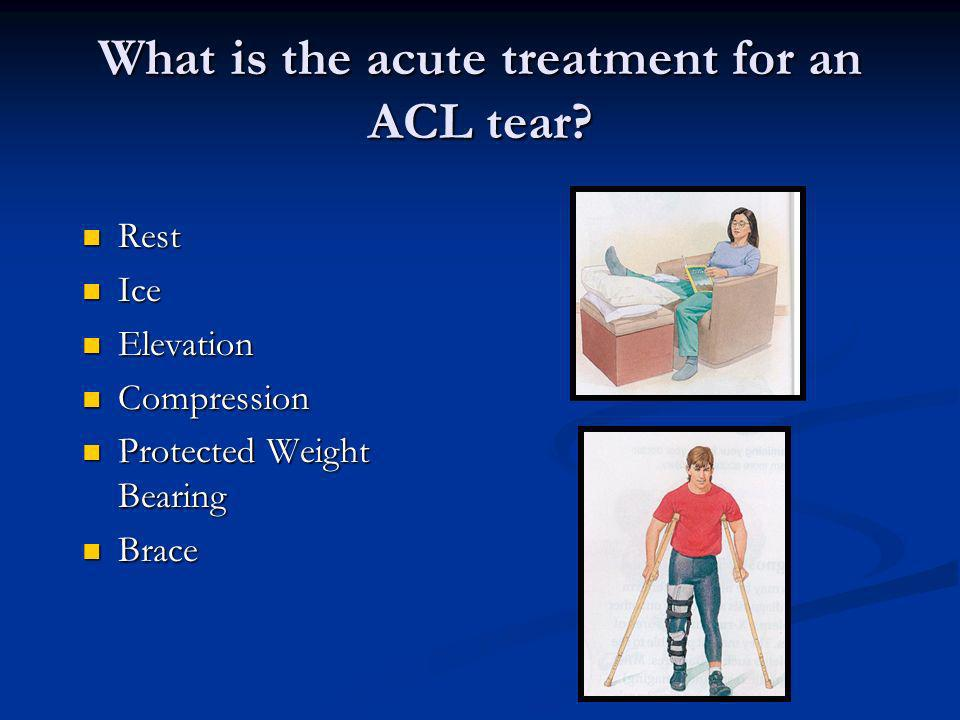 What is the acute treatment for an ACL tear
