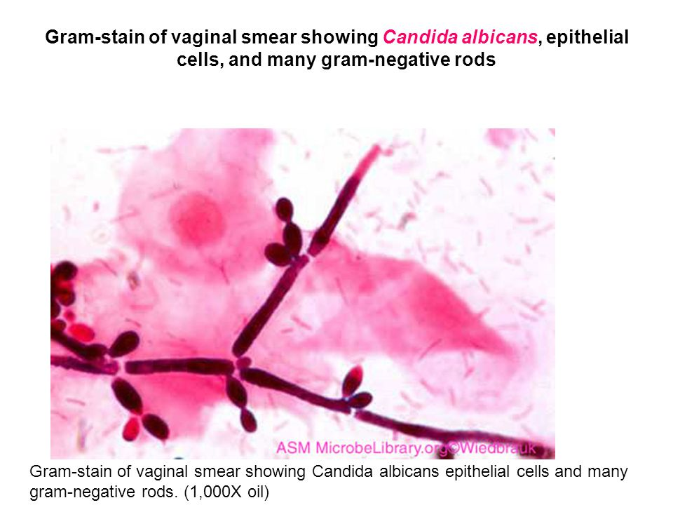 Gram-stain of vaginal smear showing Candida albicans, epithelial cells, and many gram-negative rods