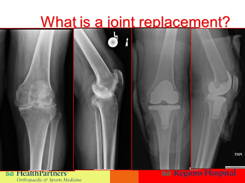 What is a joint replacement