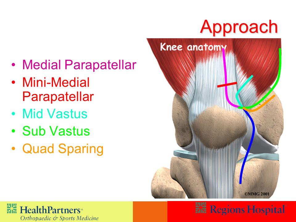 Approach Medial Parapatellar Mini-Medial Parapatellar Mid Vastus
