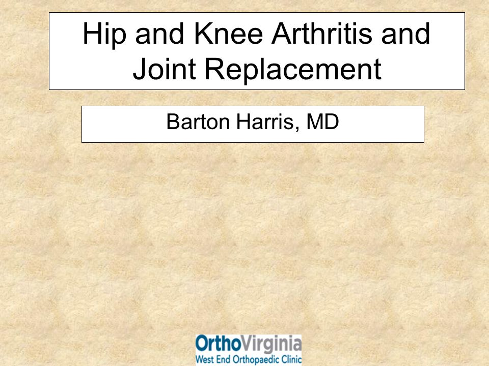 Hip and Knee Arthritis and Joint Replacement
