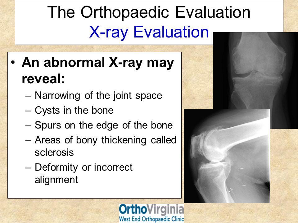 The Orthopaedic Evaluation X-ray Evaluation