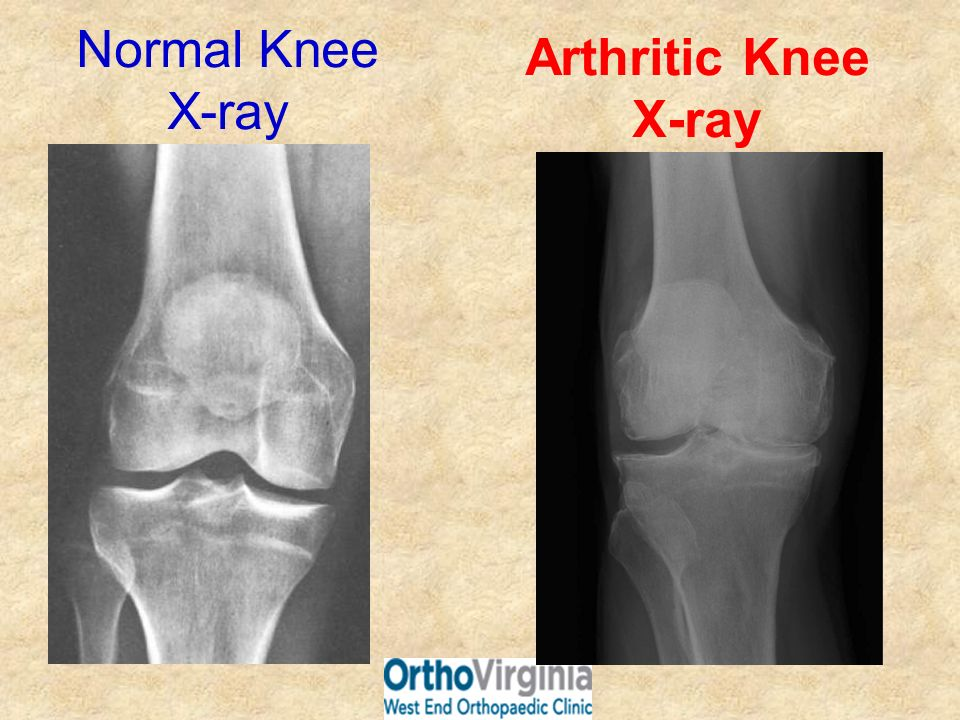 Normal Knee X-ray Arthritic Knee X-ray