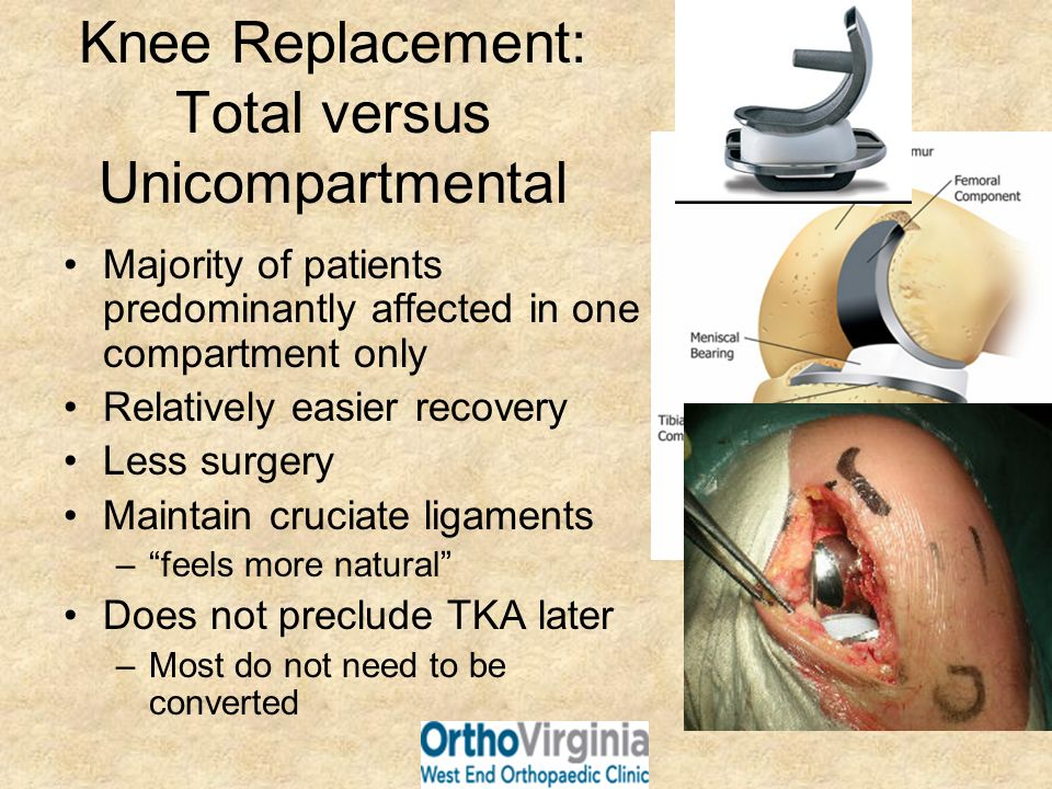 Knee Replacement: Total versus Unicompartmental