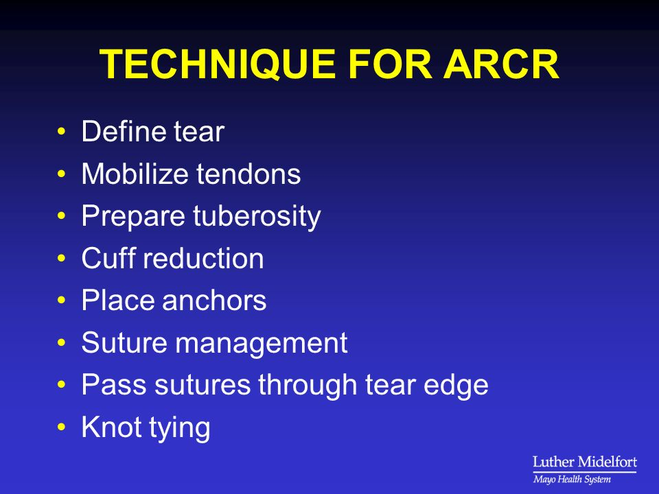 TECHNIQUE FOR ARCR Define tear Mobilize tendons Prepare tuberosity