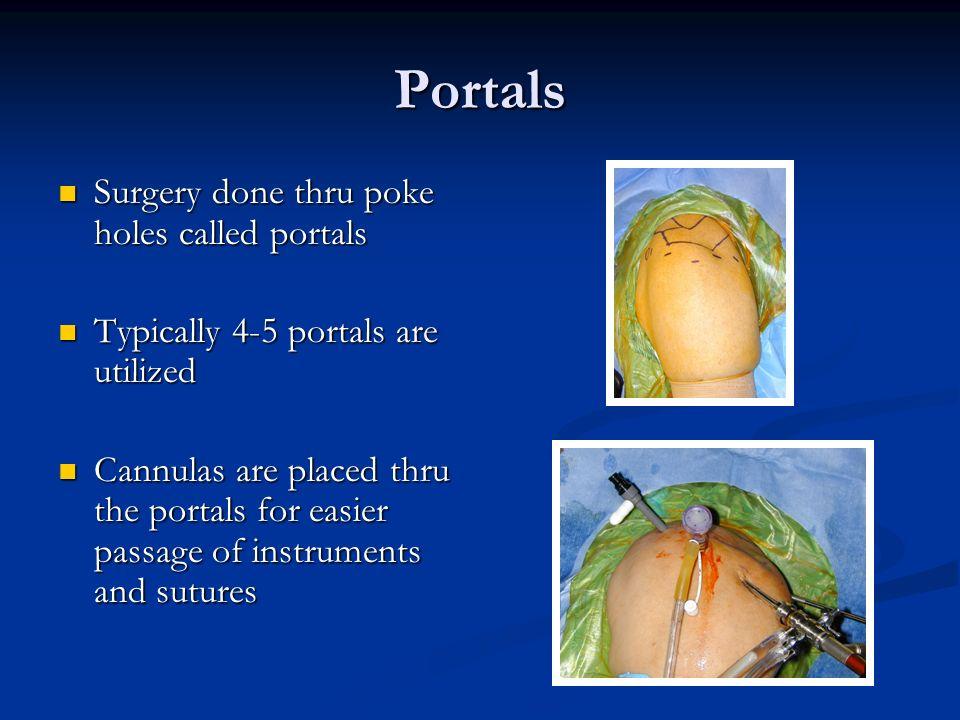 Portals Surgery done thru poke holes called portals