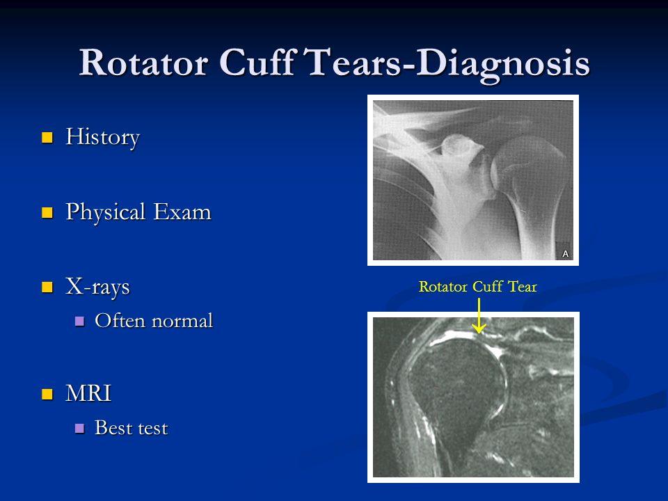 Rotator Cuff Tears-Diagnosis